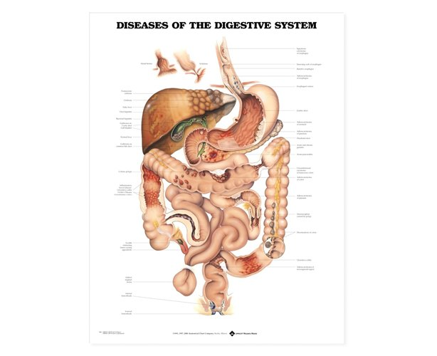 Anatomical World Wide Diseases Of The Digestive System Anatomical Chart