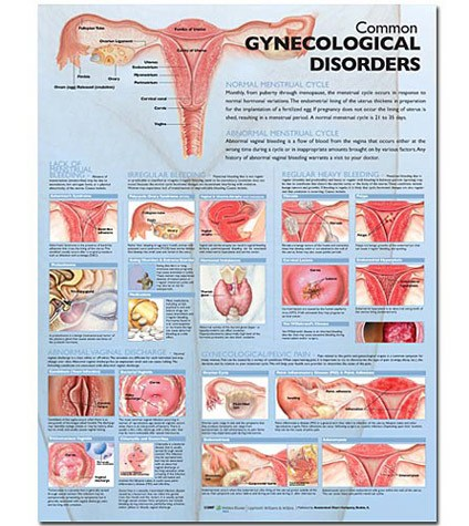 Anatomical World Wide Common Gynecological Disorders Anatomical Chart
