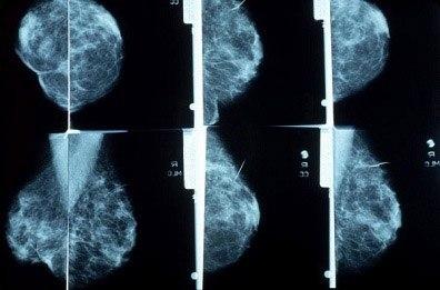Mammogram X-Rays