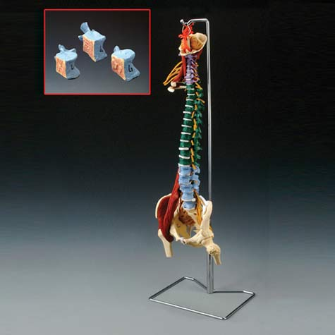 Muscle Spine With Disorders Model with Stand