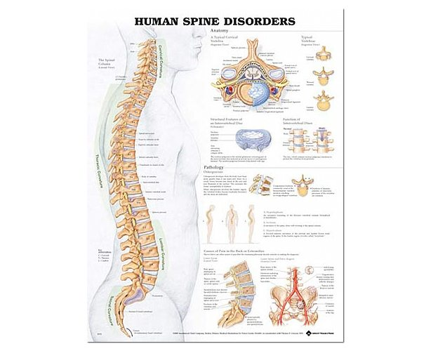 Anatomical World Wide Human Spine Disorders Anatomical Chart
